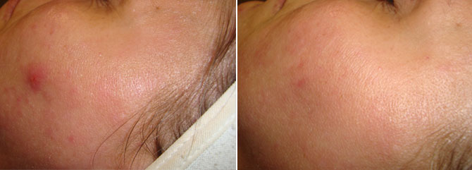Eczema Treatment - Before & after